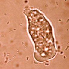 Amoebiasis.jpg