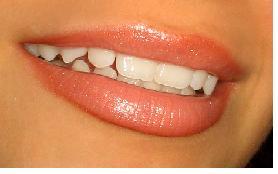 dental care eating disorder